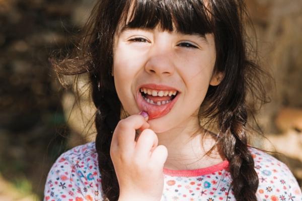 Los problemas dentales más comunes en niños