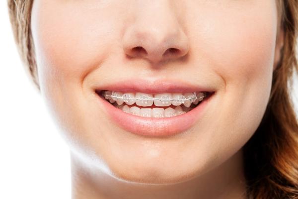 Los mejores consejos sobre ortodoncia